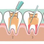 What is meant by a root canal?